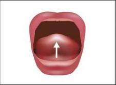 Die ganze Zunge hebt sich bis zur Mitte des Mundes