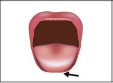 Die Zungenspitze kann über die Lippen heraus ausgestreckt werden.