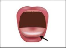 Die Zungenspitze geht über das Zahnfleisch